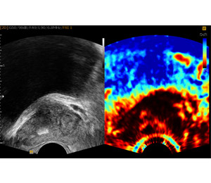 Elastography Munich